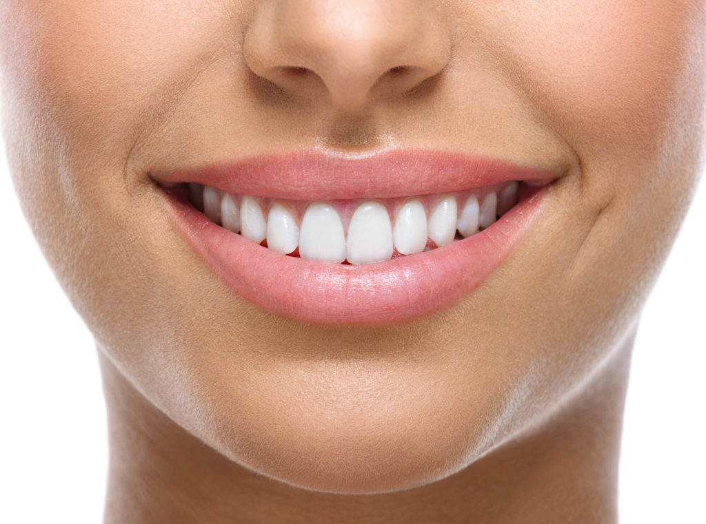 Closeup of a patient smiling while wearing the Best Dental Implants in Naples