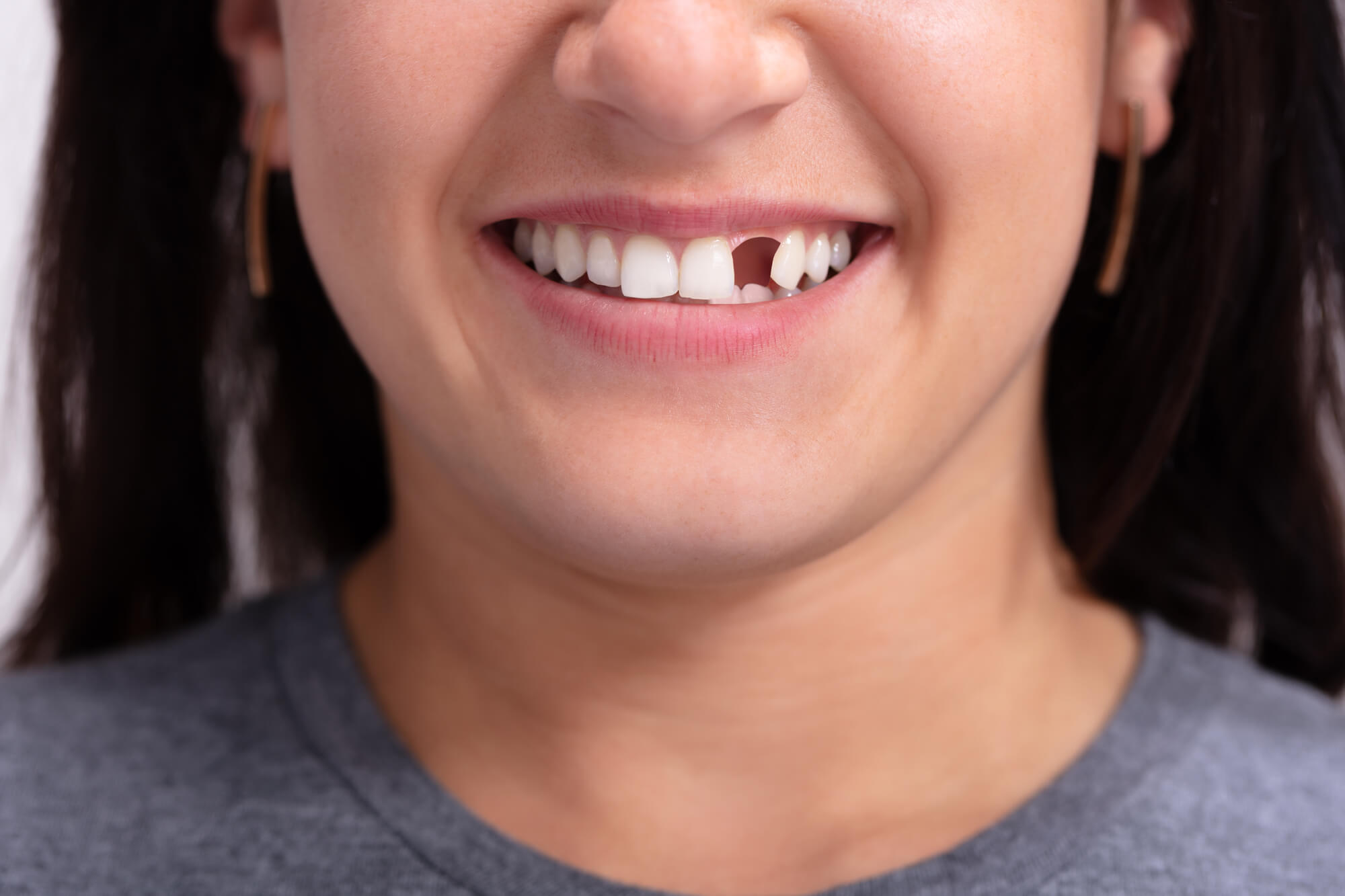 woman with missing tooth needing an emergency dentist in Naples